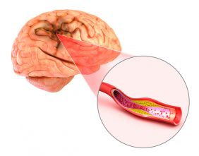 Brain stroke : 3d illustration of the vessels of the brain and causes of stroke