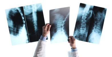 Radiologist checking an x-ray image on a view light box, unrecognizable person, medical assistance and healthcare concept
